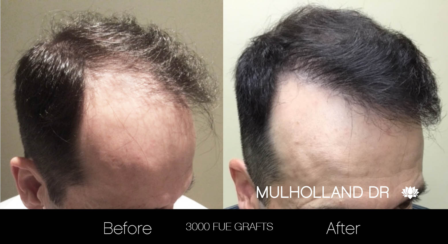 FUE Hair Male - Before and After Gallery – Photo 24