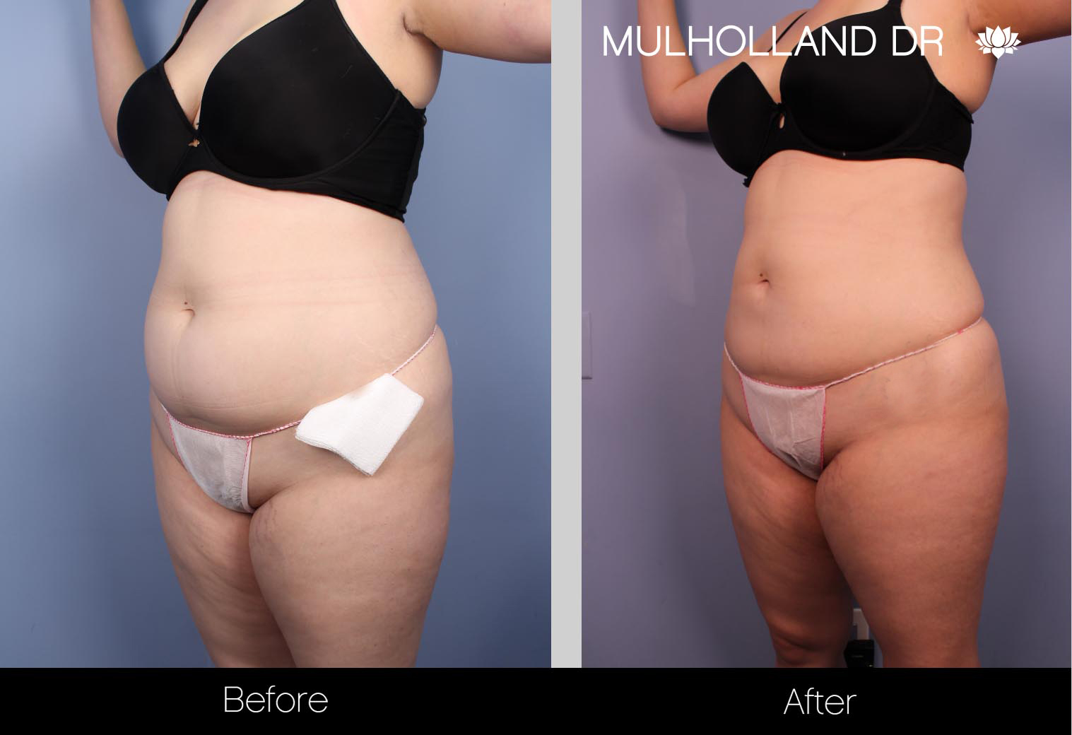 Liposuction - Before and After Gallery – Photo 29