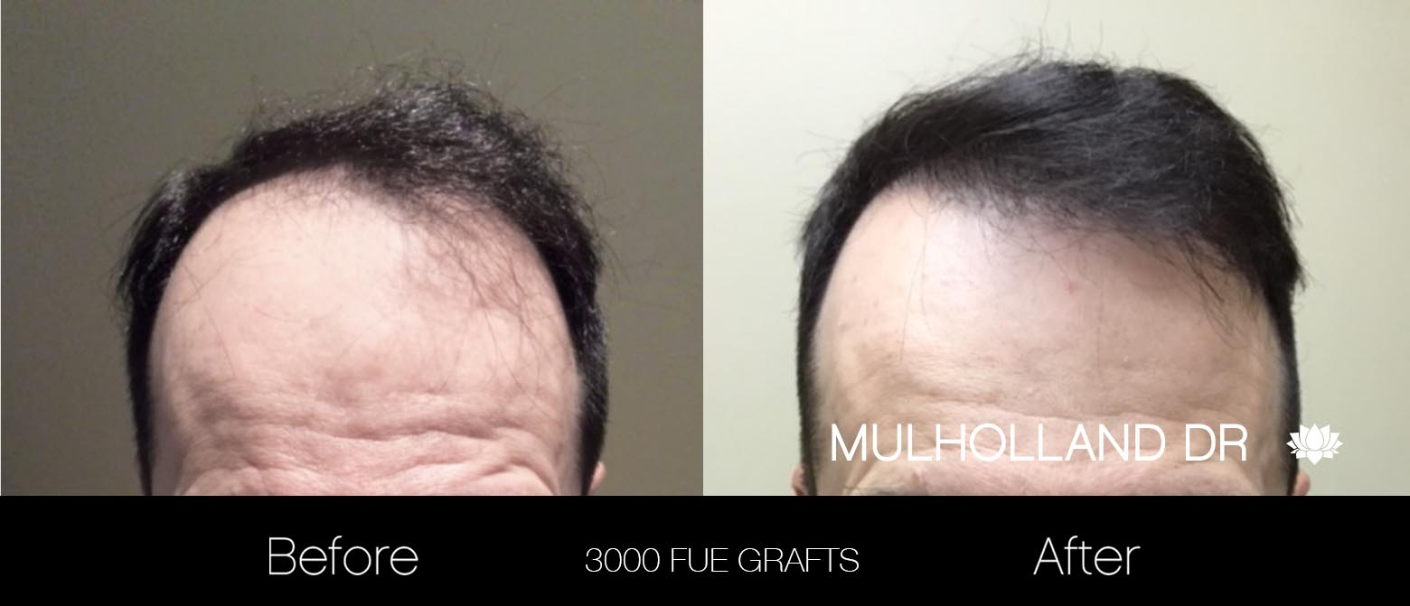 FUE Hair Male - Before and After Gallery – Photo 25