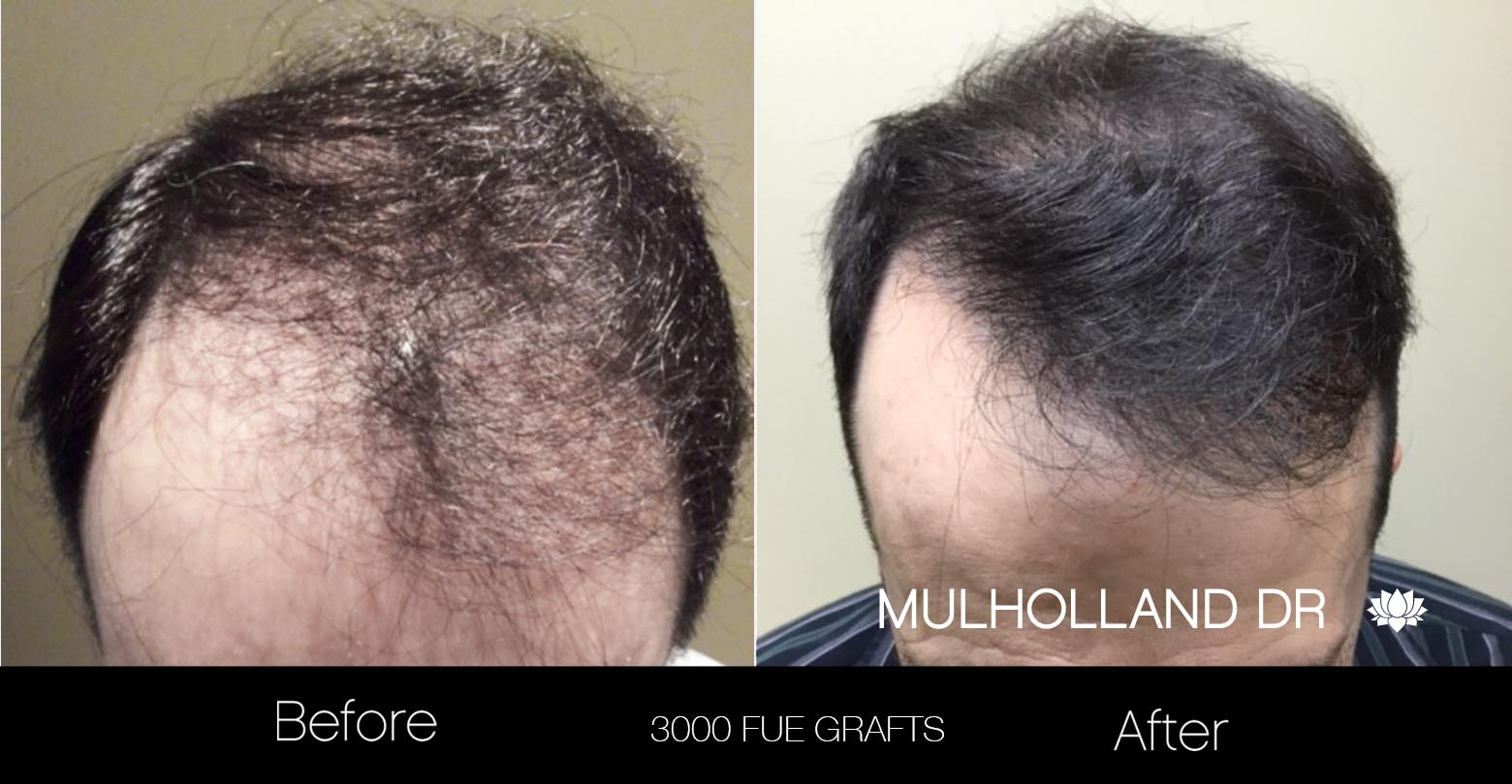 FUE Hair Male - Before and After Gallery – Photo 26