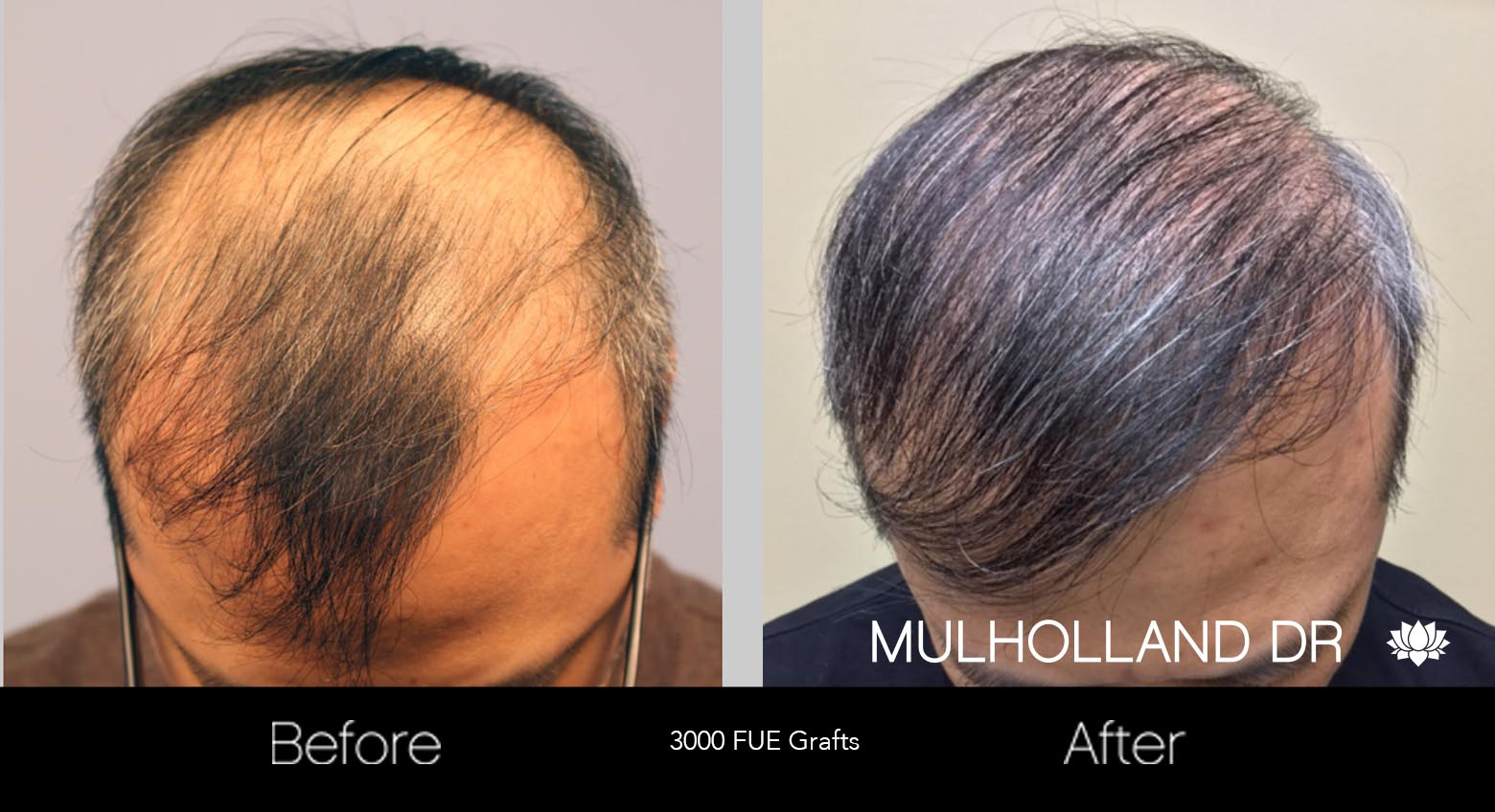 FUE Hair Male - Before and After Gallery – Photo 29