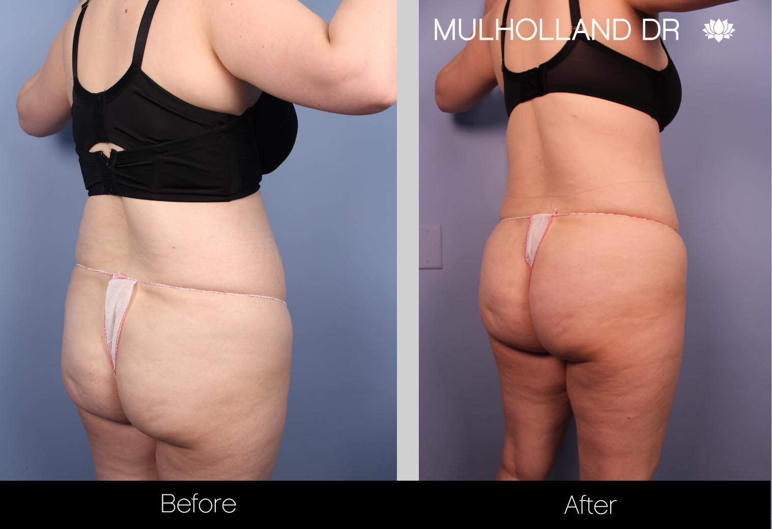 Liposuction - Before and After Gallery – Photo 33