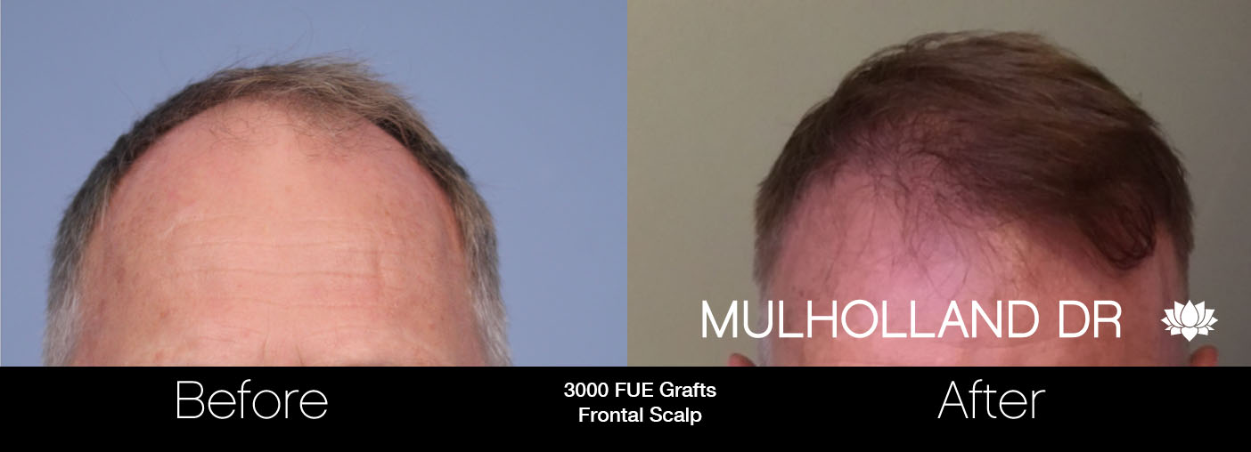 FUE Hair Male - Before and After Gallery – Photo 31