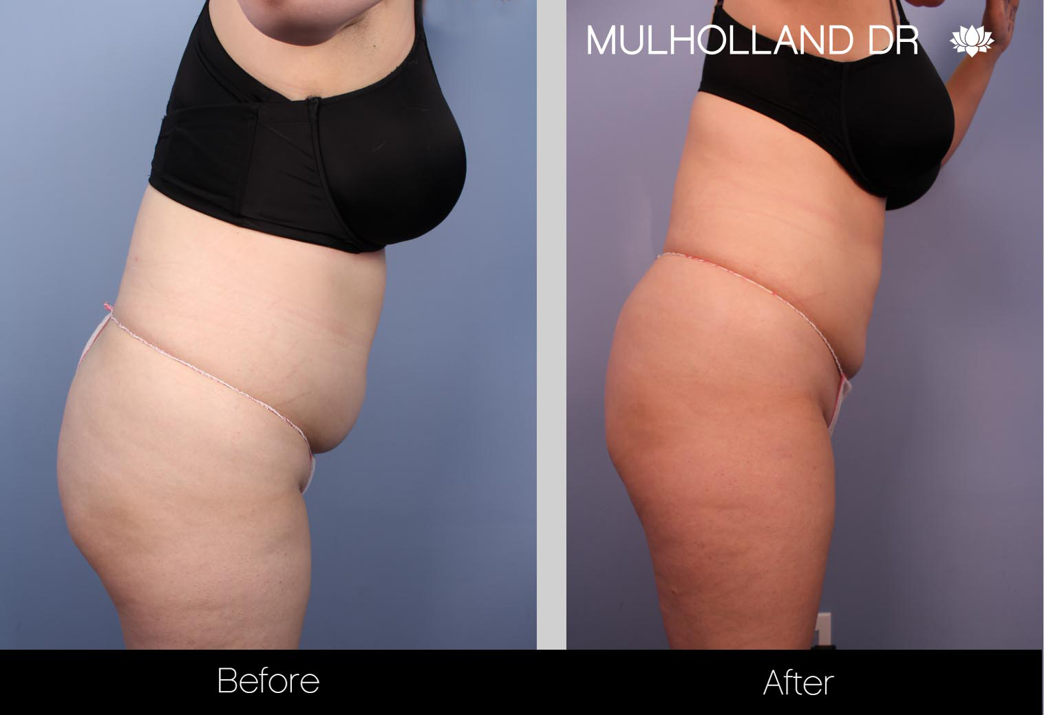 Liposuction - Before and After Gallery – Photo 35