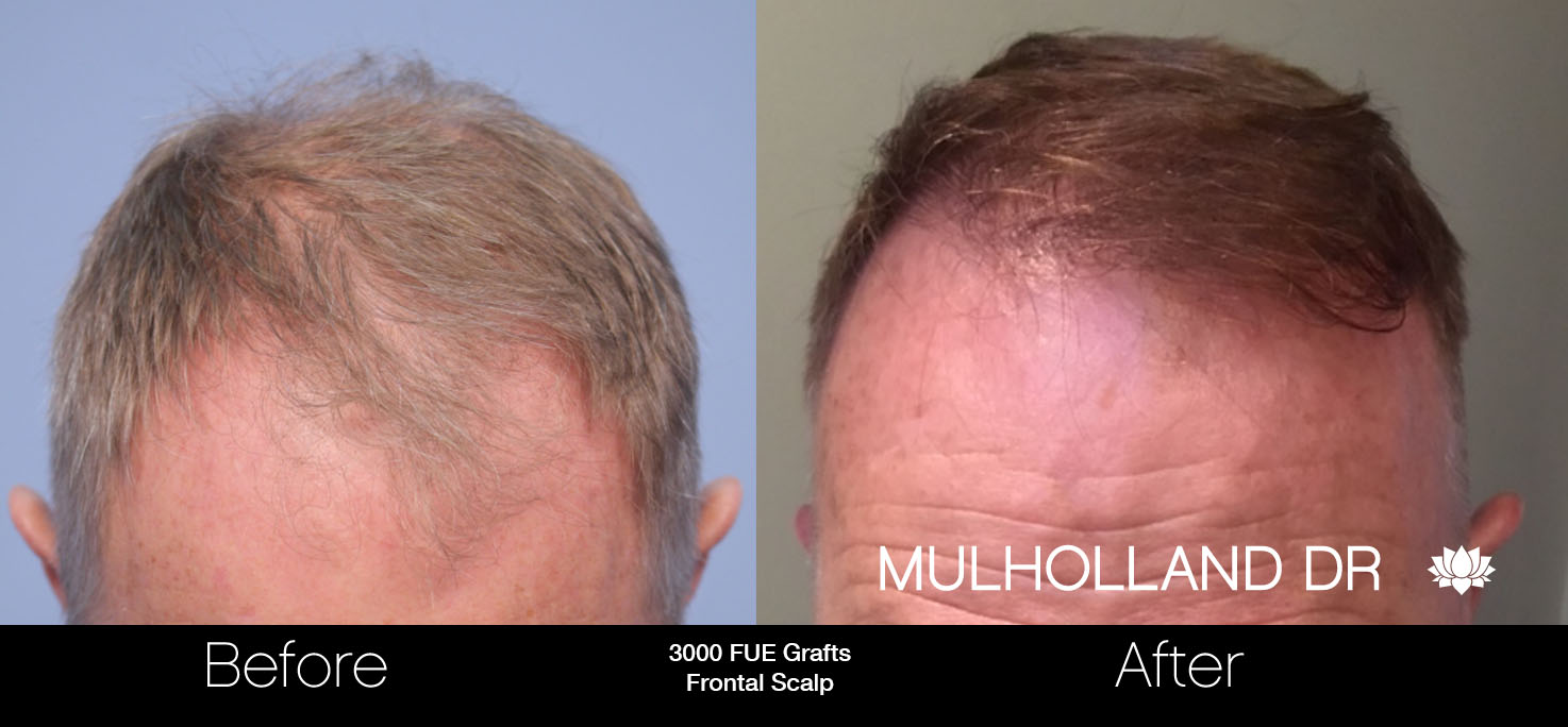 FUE Hair Male - Before and After Gallery – Photo 32