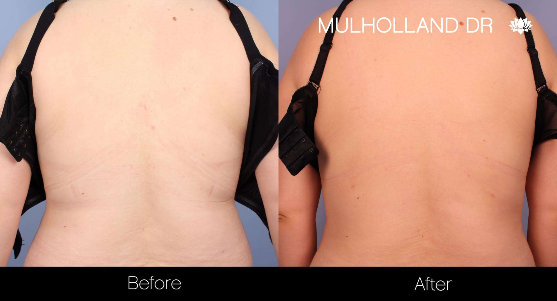 Liposuction - Before and After Gallery – Photo 36