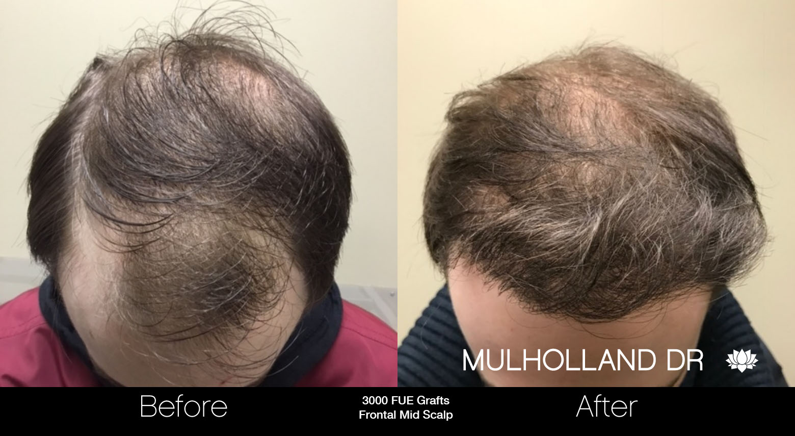 FUE Hair Male - Before and After Gallery – Photo 33