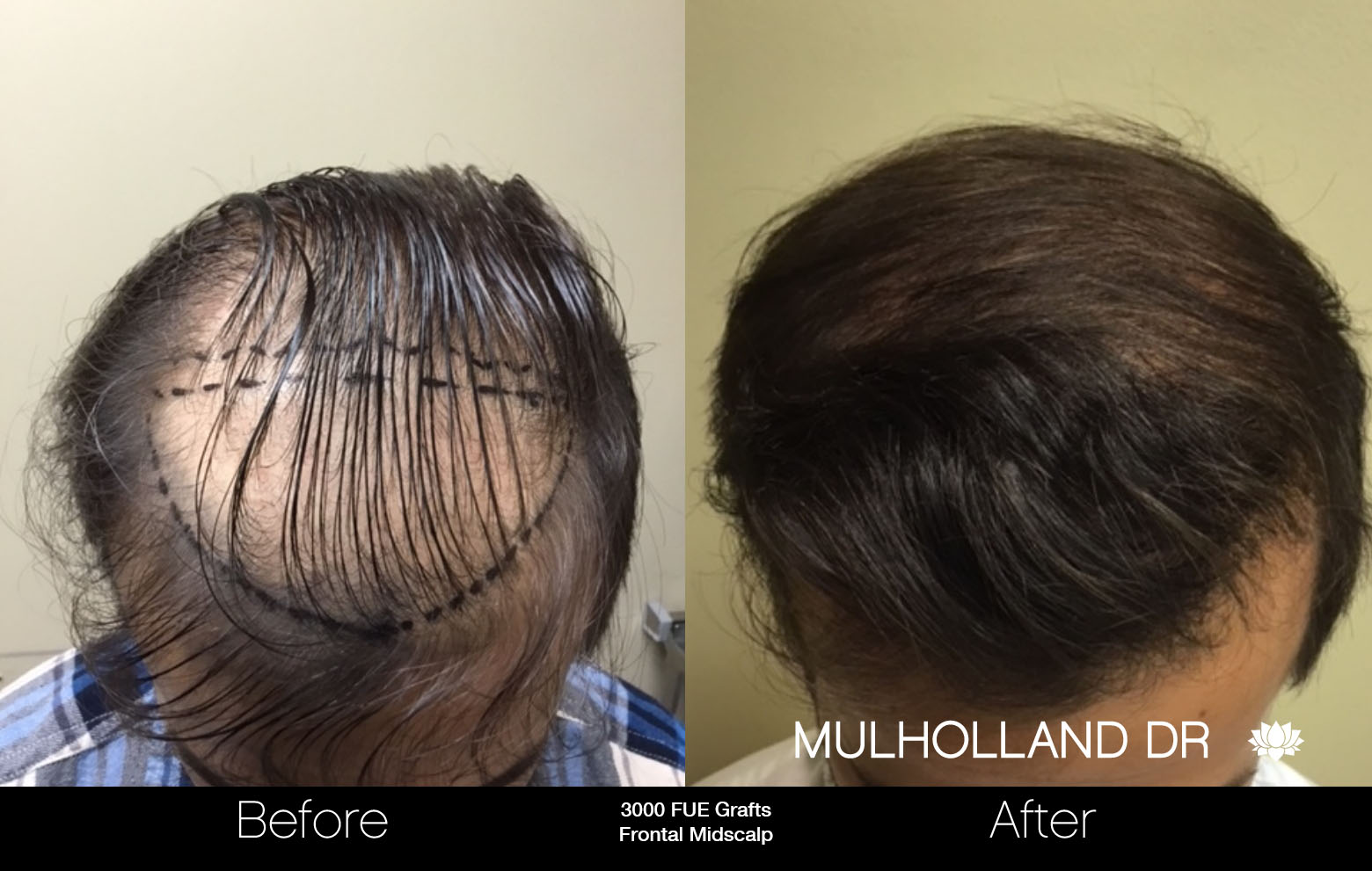 FUE Hair Male - Before and After Gallery – Photo 34