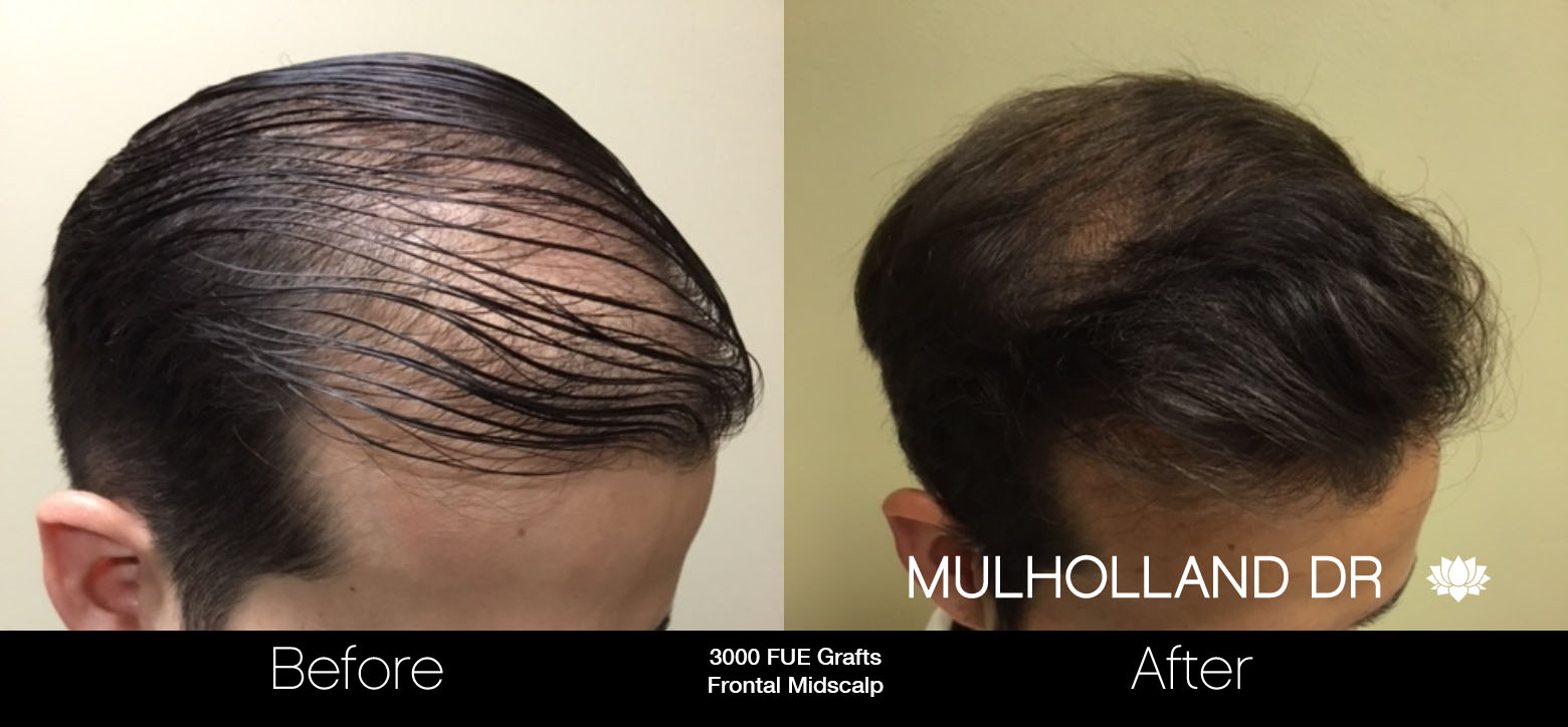 FUE Hair Male - Before and After Gallery – Photo 35