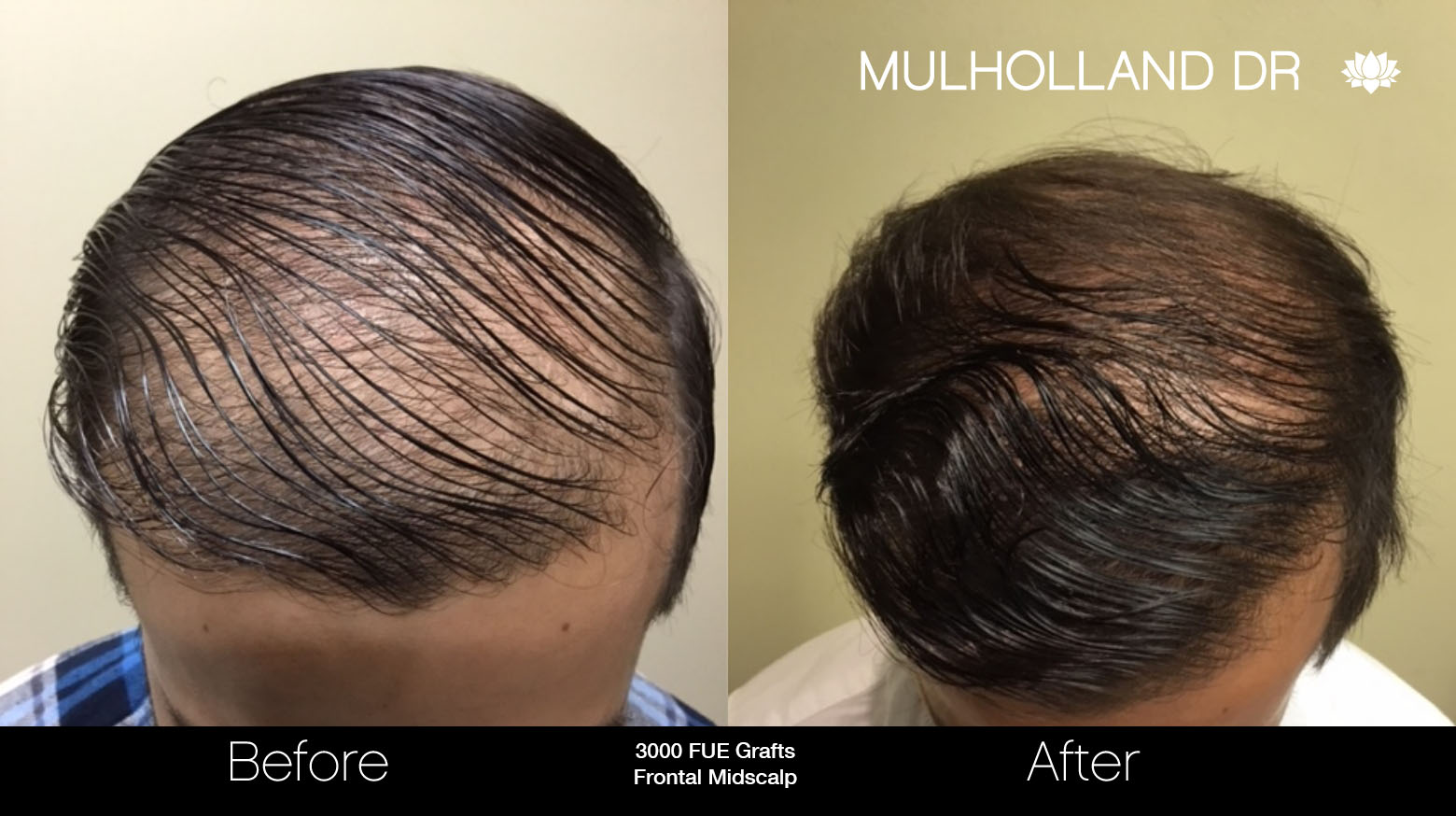 FUE Hair Male - Before and After Gallery – Photo 37