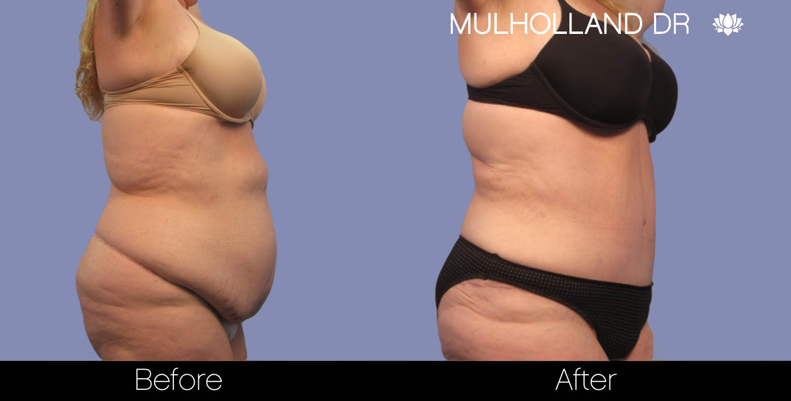 Liposuction - Before and After Gallery – Photo 3