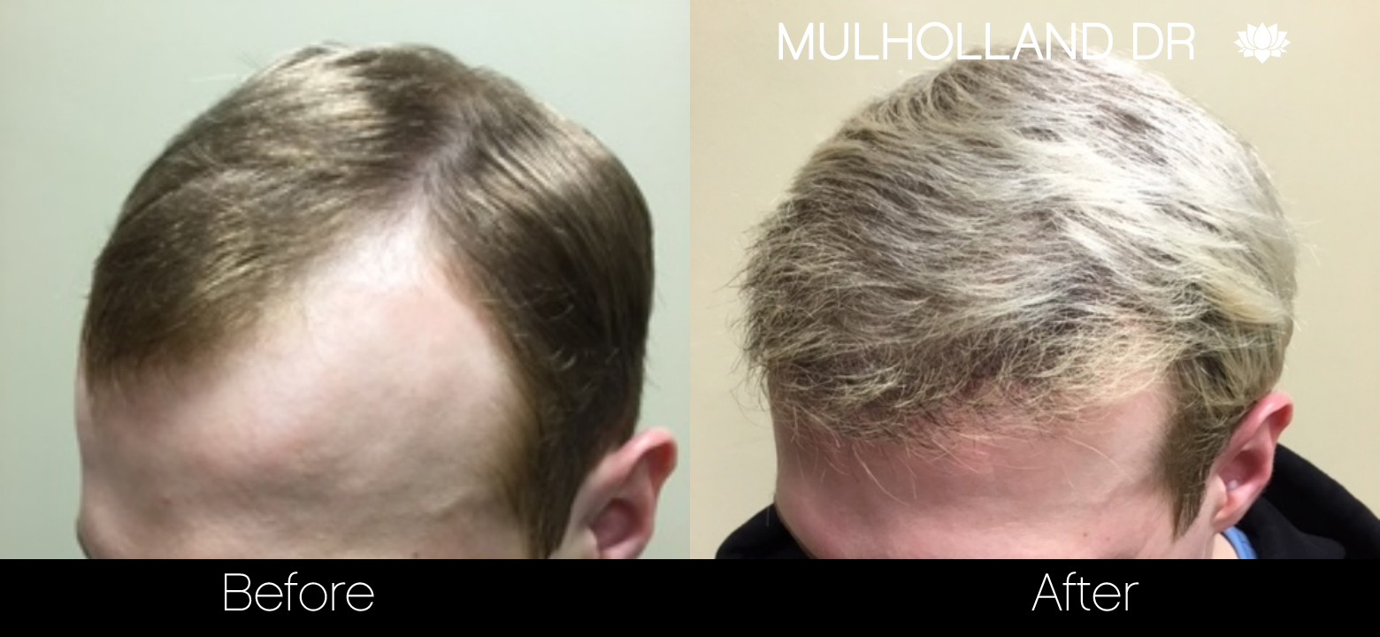 FUE Hair Male - Before and After Gallery – Photo 36