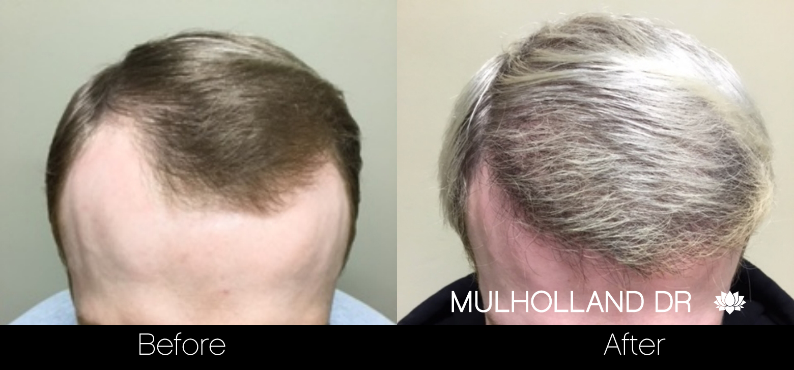 FUE Hair Male - Before and After Gallery – Photo 38