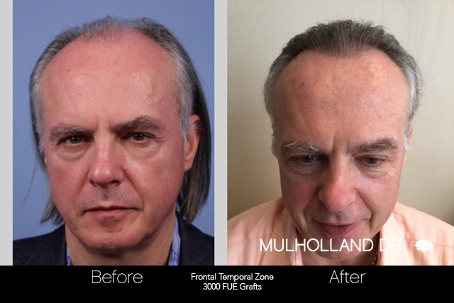 FUE Hair Male - Before and After Gallery – Photo 42