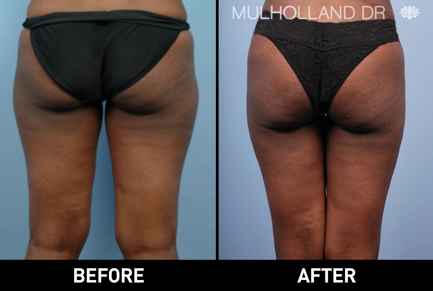 Liposuction - Before and After Gallery – Photo 13
