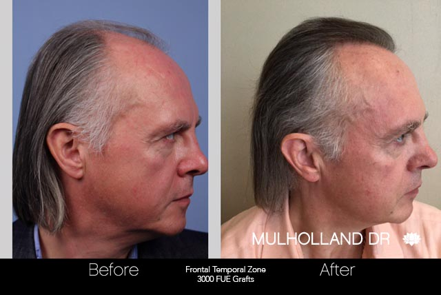 FUE Hair Male - Before and After Gallery – Photo 43