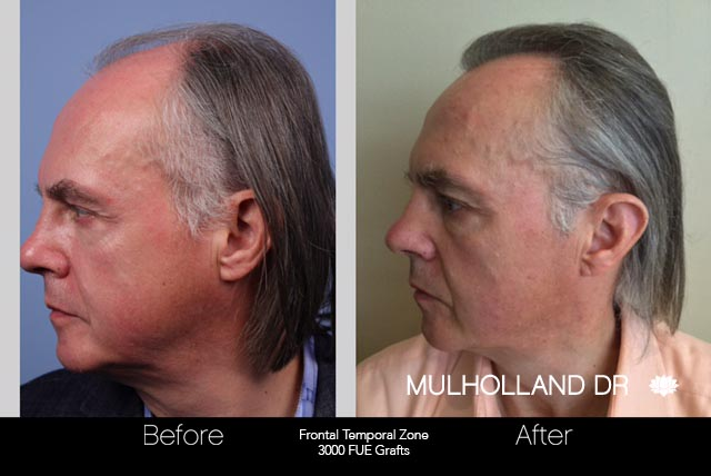 FUE Hair Male - Before and After Gallery – Photo 44