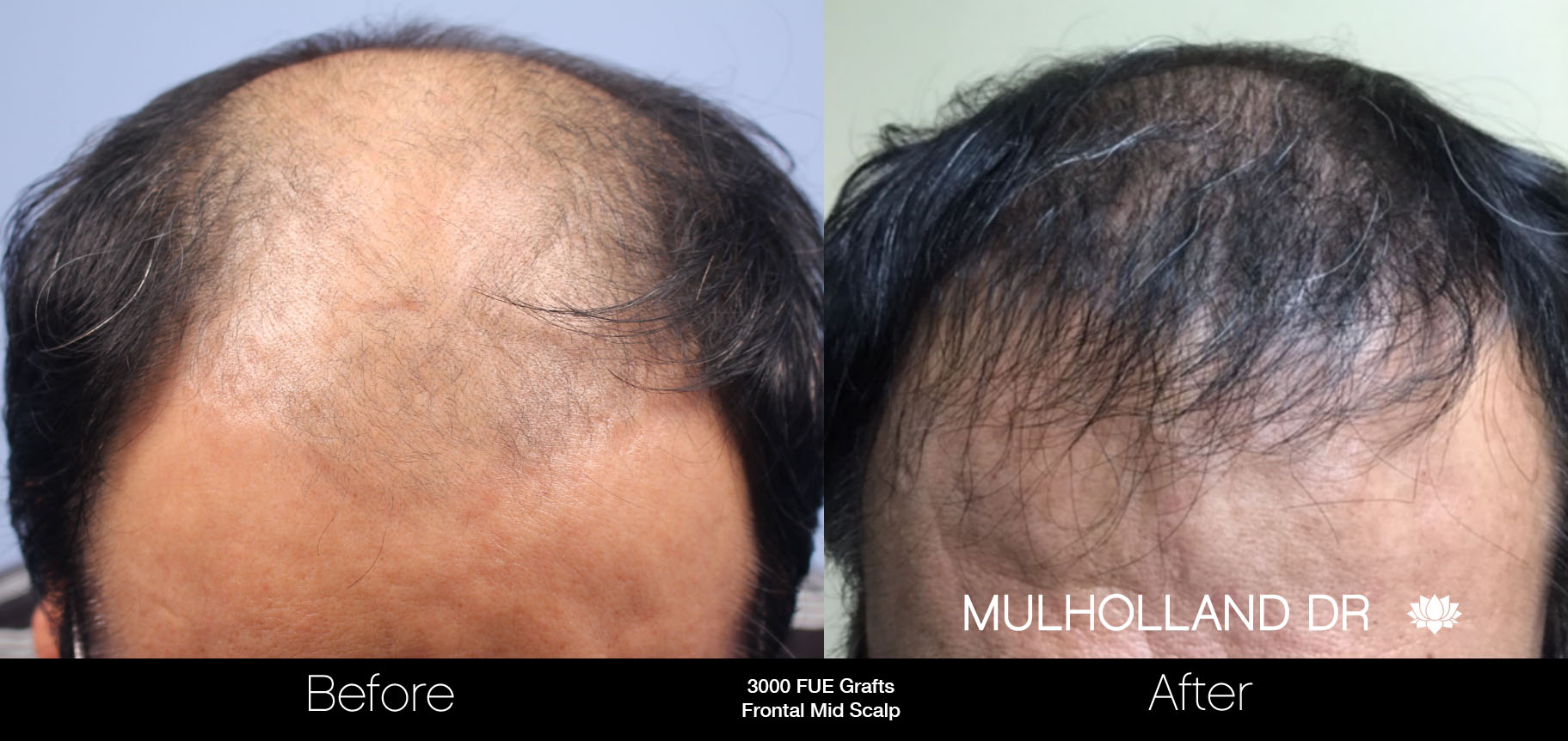 FUE Hair Male - Before and After Gallery – Photo 48