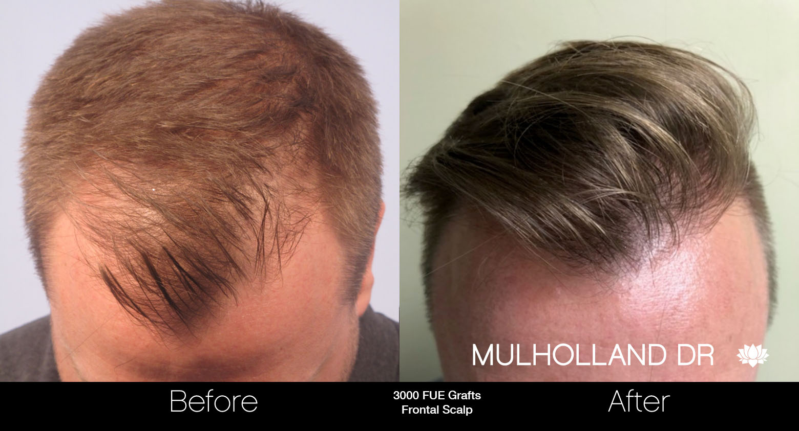 FUE Hair Male - Before and After Gallery – Photo 49