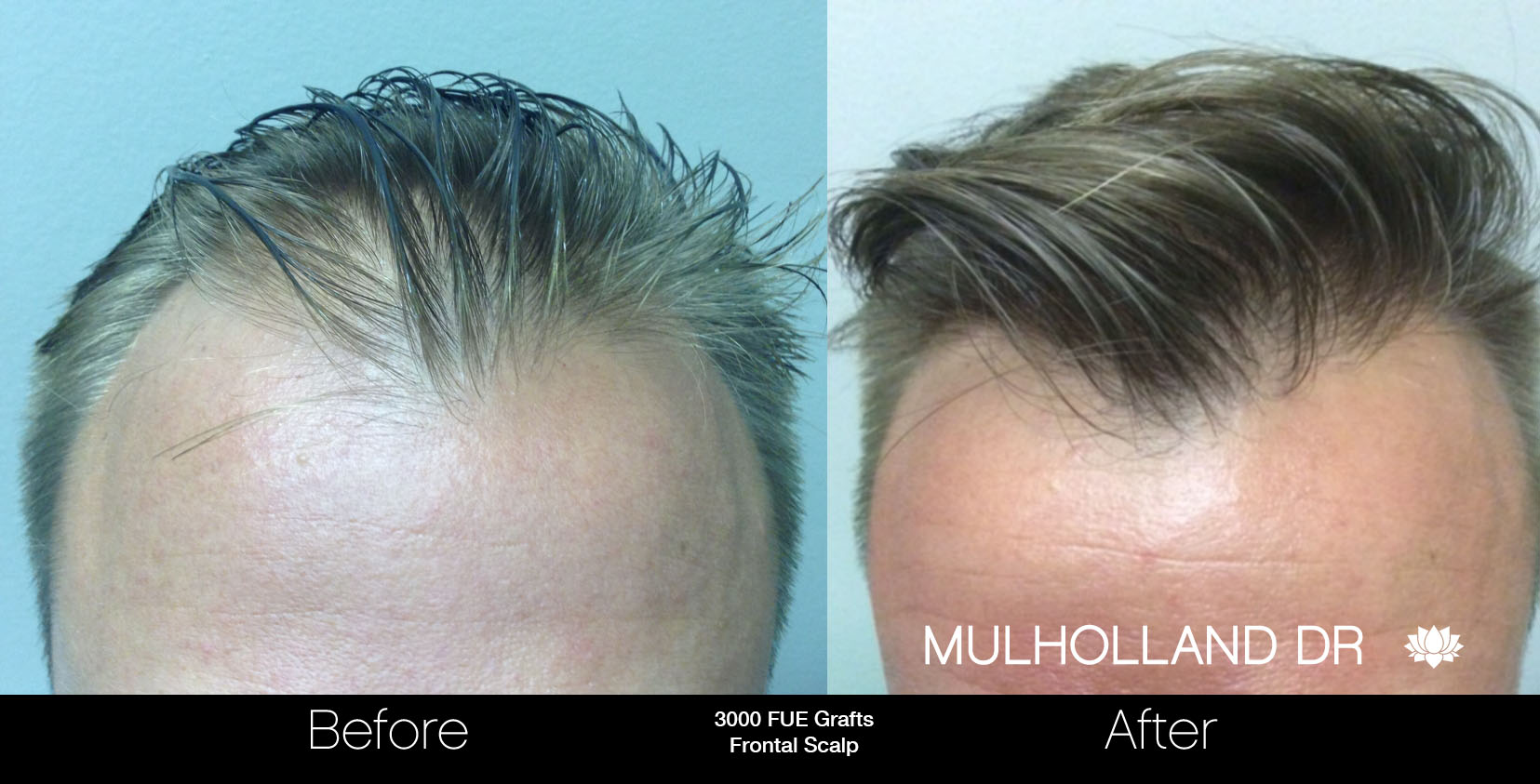 FUE Hair Male - Before and After Gallery – Photo 50