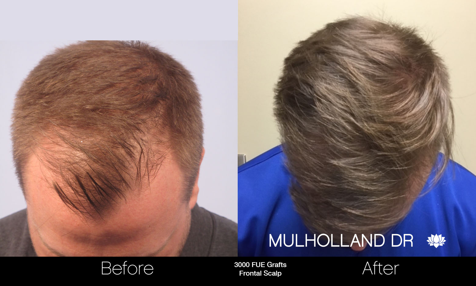 FUE Hair Male - Before and After Gallery – Photo 51