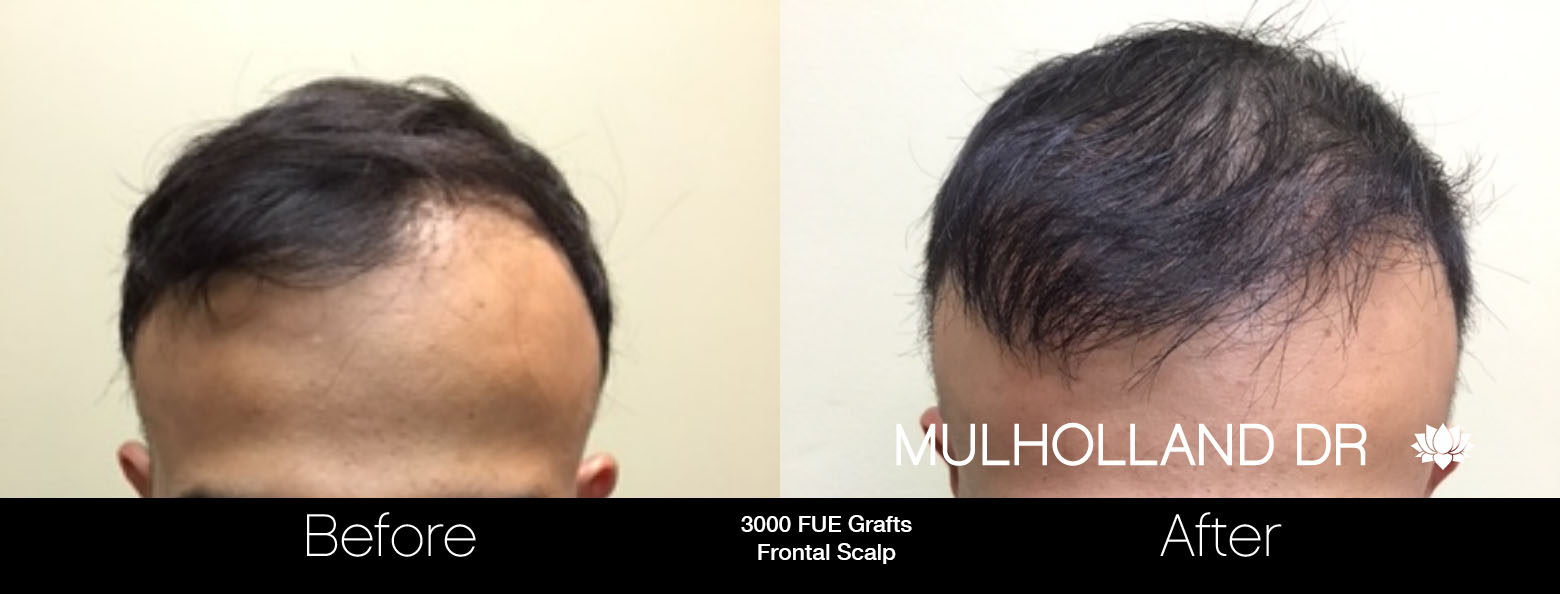 FUE Hair Male - Before and After Gallery – Photo 52