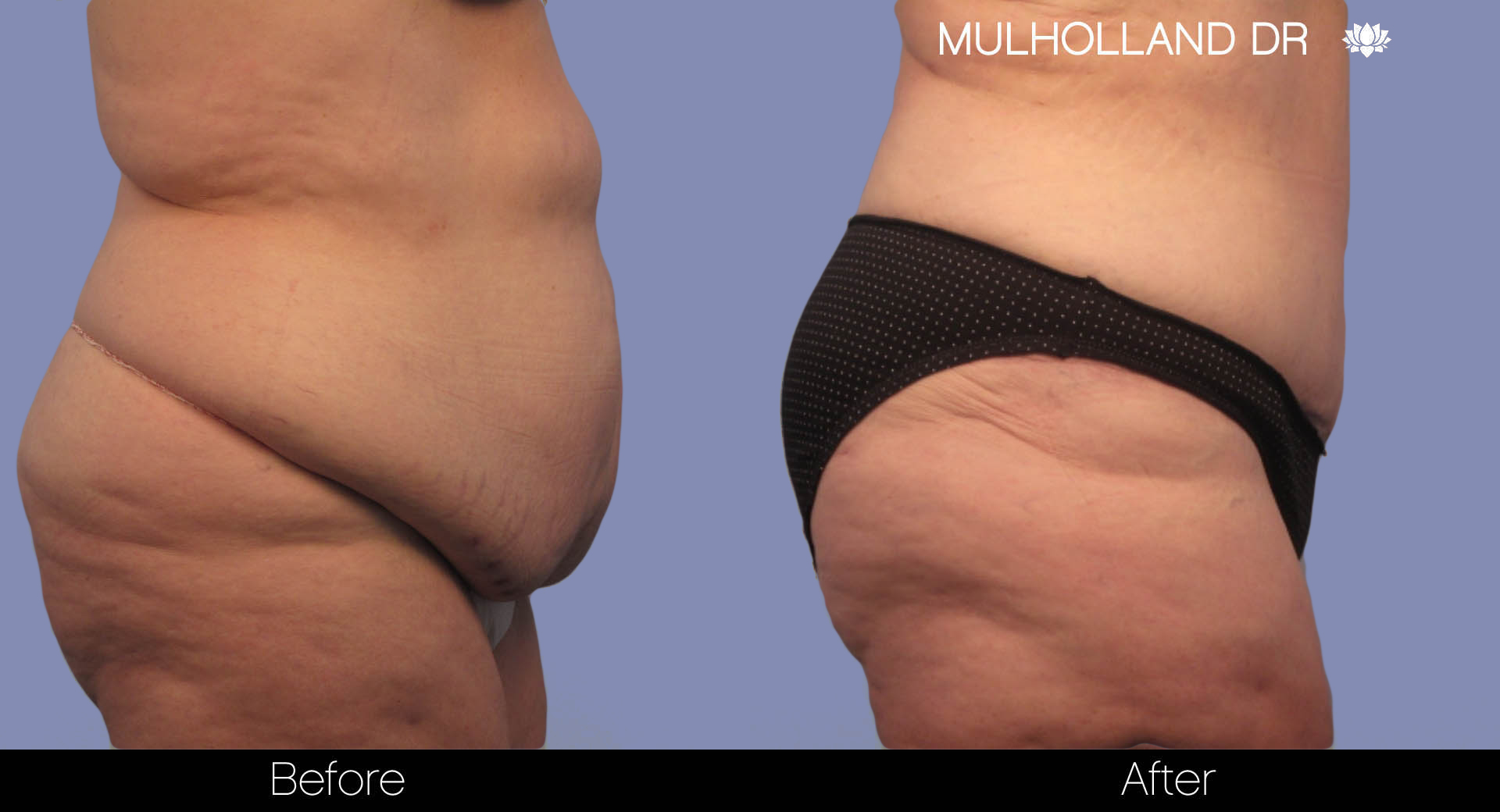 Liposuction - Before and After Gallery – Photo 5