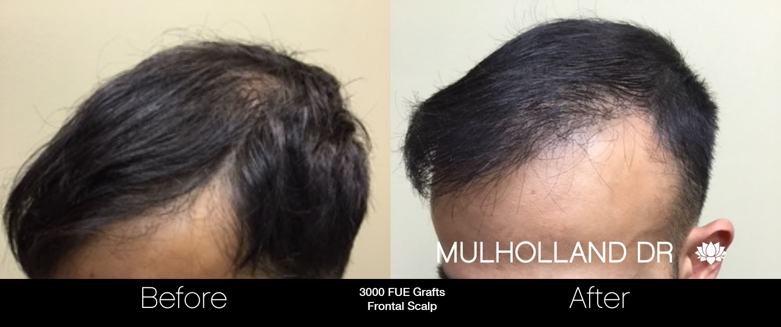 FUE Hair Male - Before and After Gallery – Photo 53