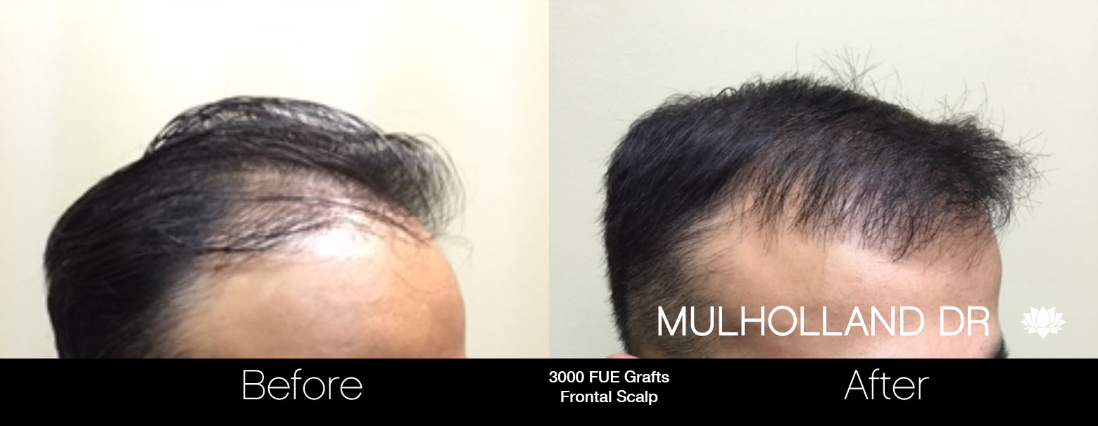 FUE Hair Male - Before and After Gallery – Photo 54