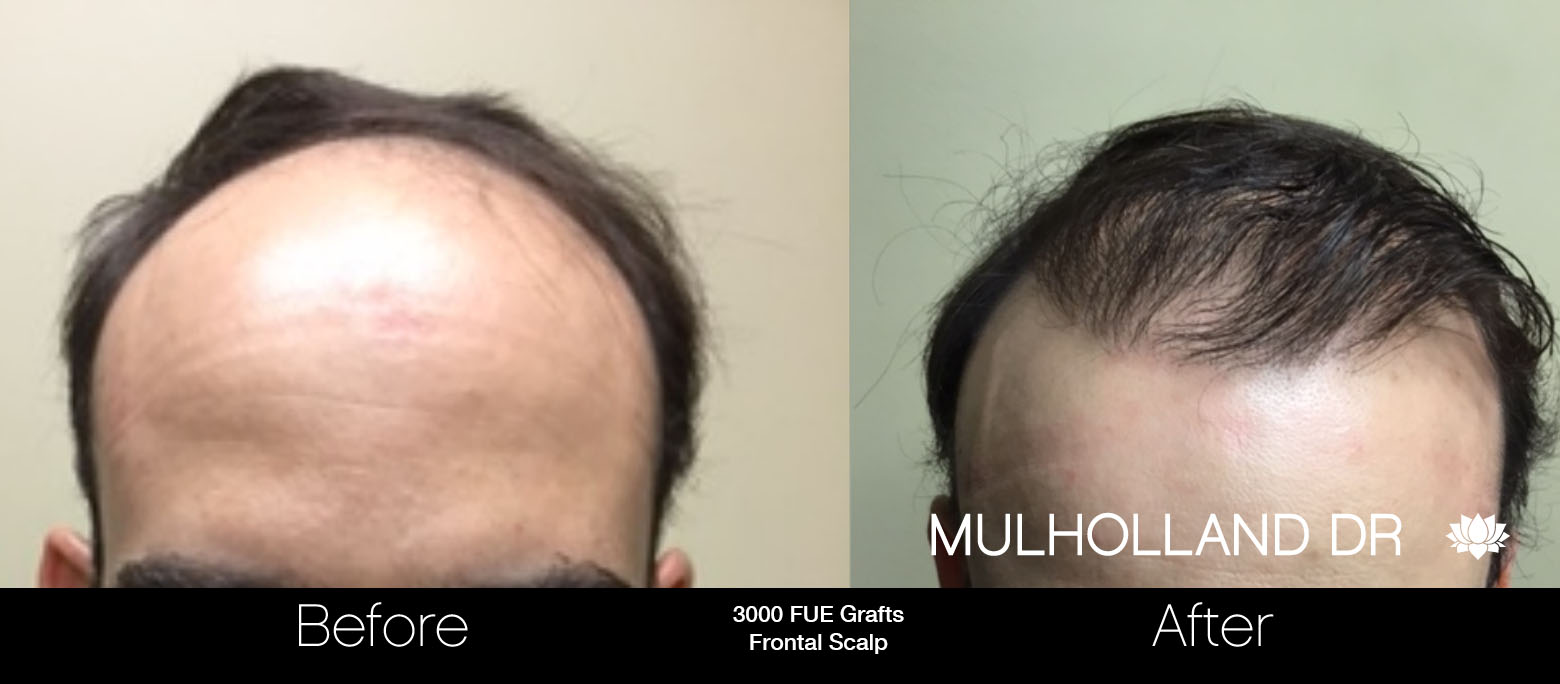 FUE Hair Male - Before and After Gallery – Photo 55