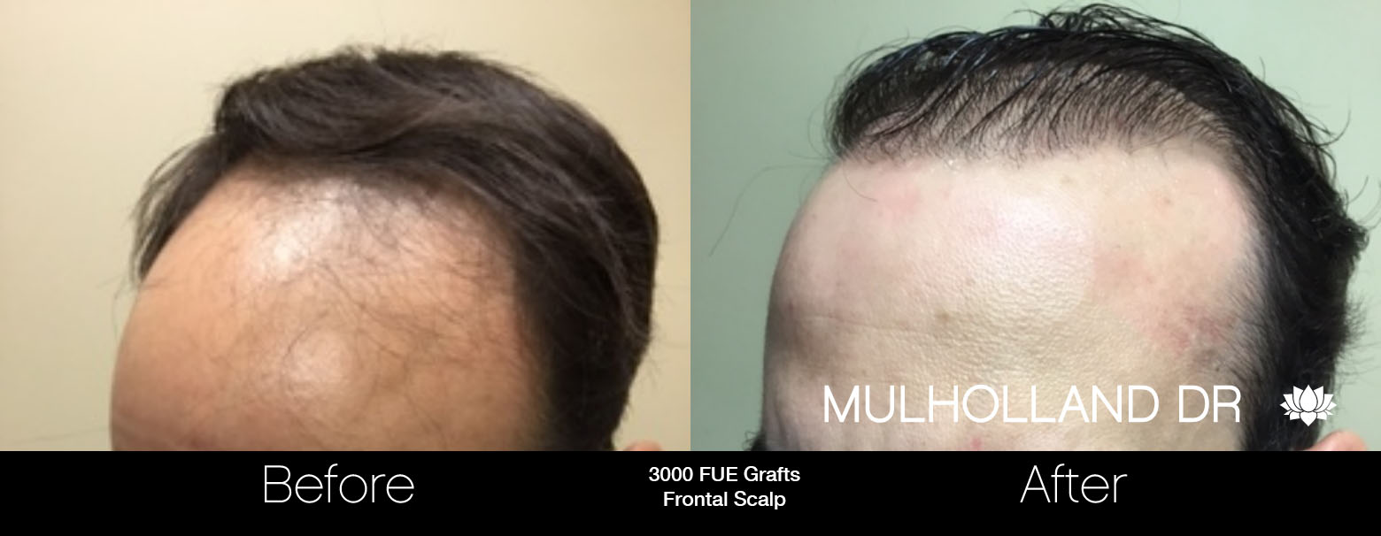 FUE Hair Male - Before and After Gallery – Photo 56