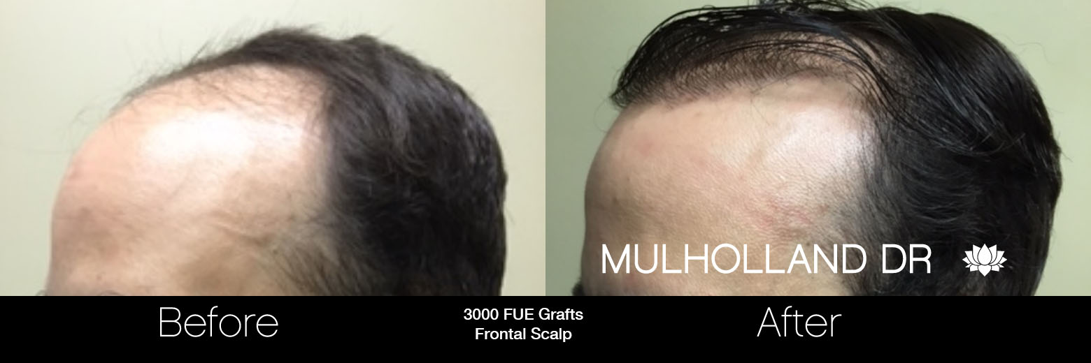 FUE Hair Male - Before and After Gallery – Photo 57