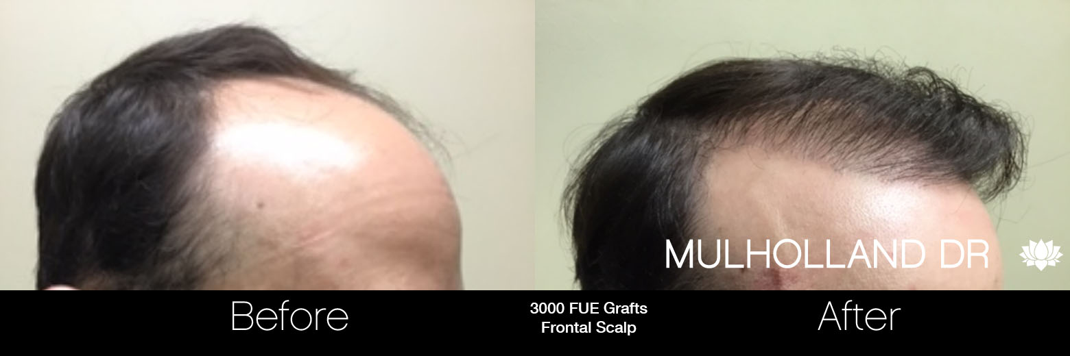 FUE Hair Male - Before and After Gallery – Photo 58