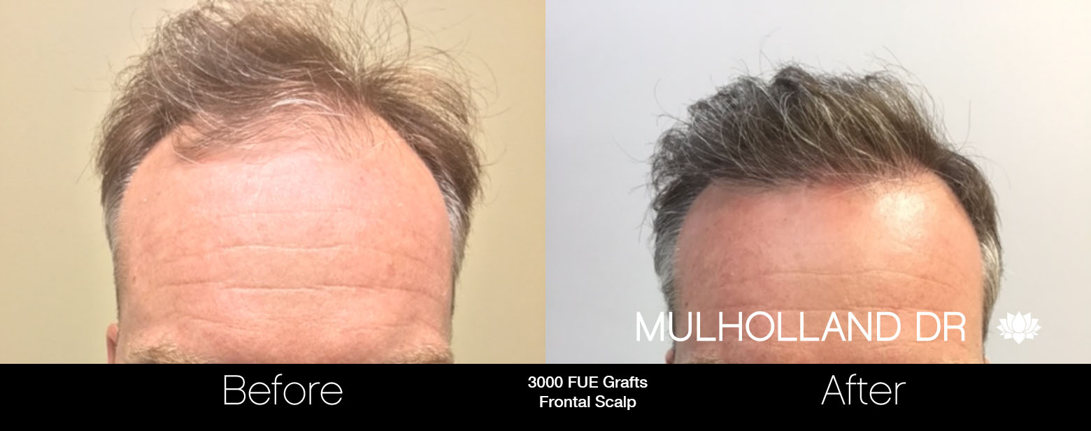 FUE Hair Male - Before and After Gallery – Photo 59