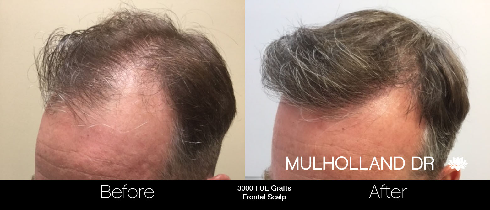 FUE Hair Male - Before and After Gallery – Photo 61