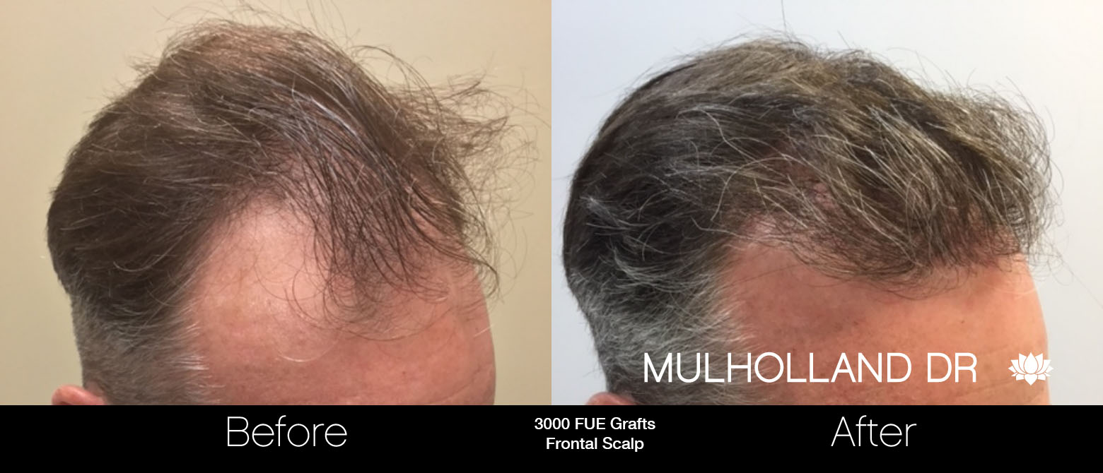 FUE Hair Male - Before and After Gallery – Photo 62
