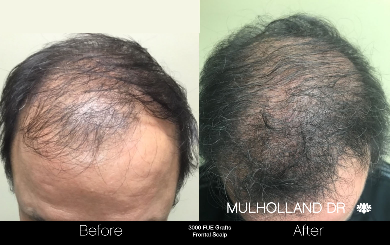 FUE Hair Male - Before and After Gallery – Photo 63