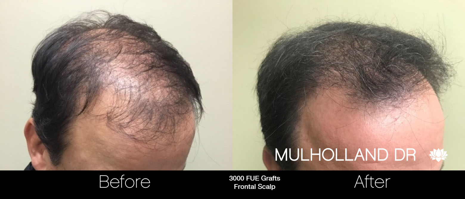 FUE Hair Male - Before and After Gallery – Photo 64