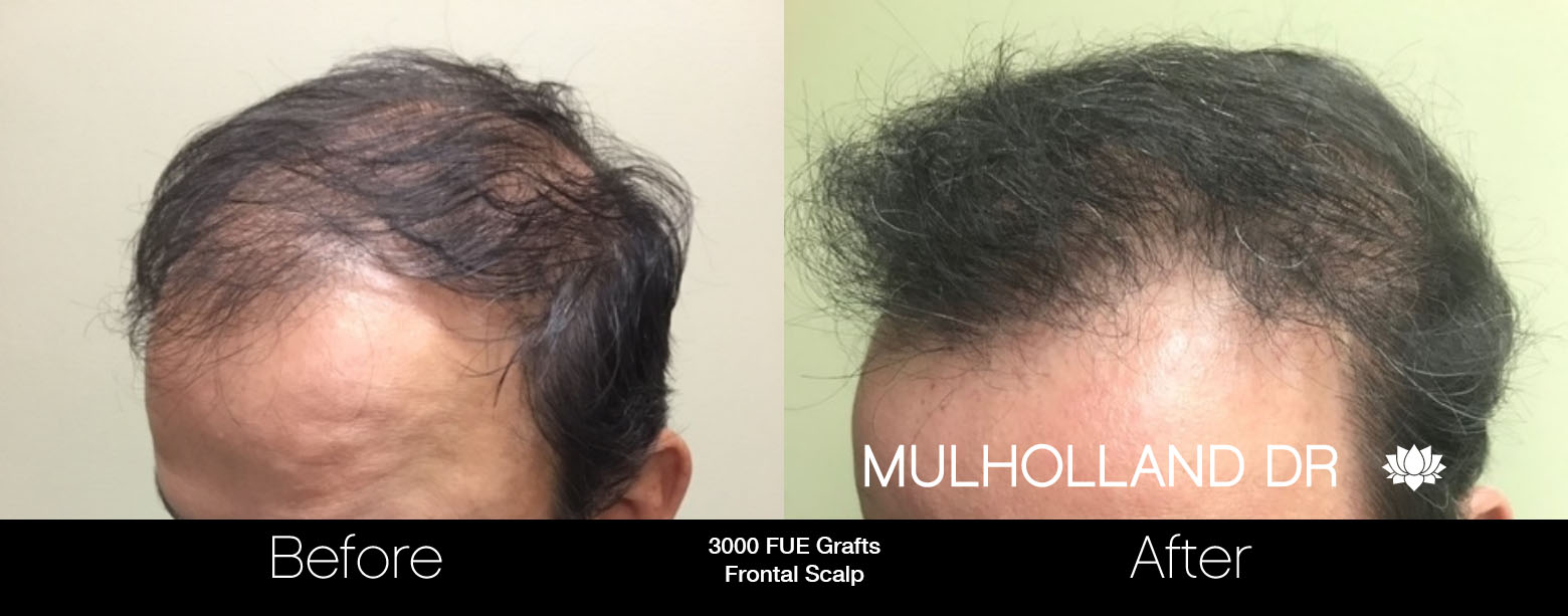 FUE Hair Male - Before and After Gallery – Photo 65