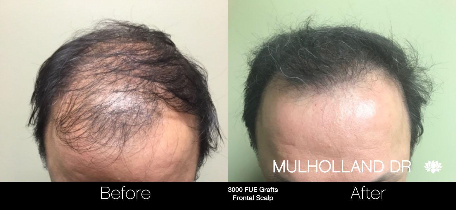 FUE Hair Male - Before and After Gallery – Photo 66