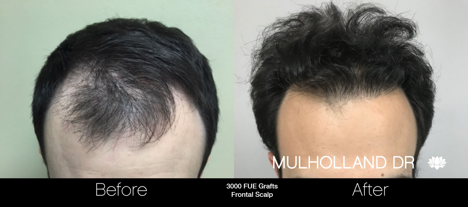 FUE Hair Male - Before and After Gallery – Photo 67