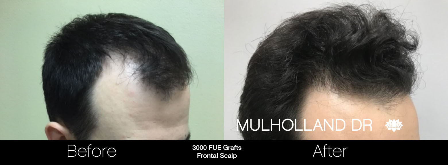FUE Hair Male - Before and After Gallery – Photo 68