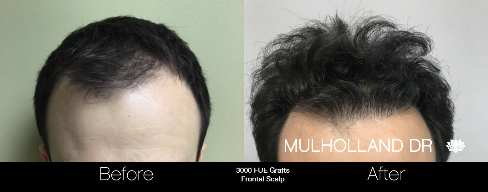 FUE Hair Male - Before and After Gallery – Photo 69