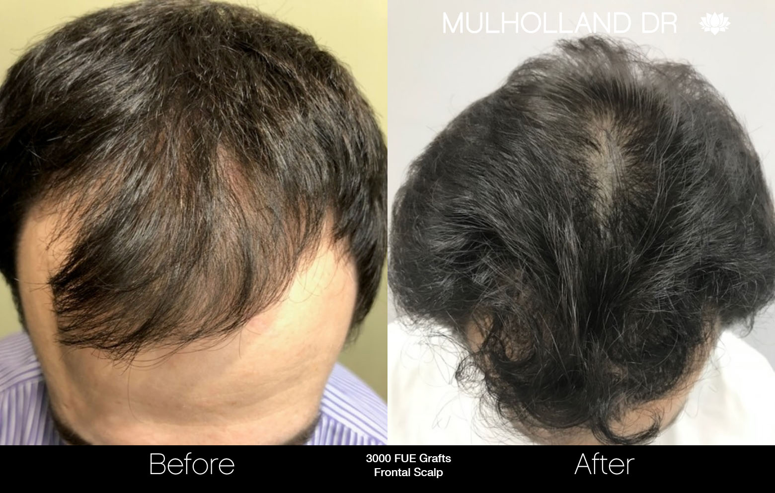 FUE Hair Male - Before and After Gallery – Photo 70