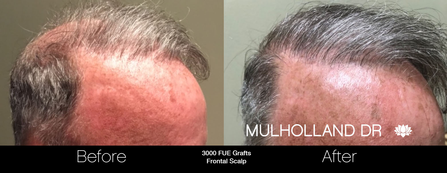 FUE Hair Male - Before and After Gallery – Photo 72