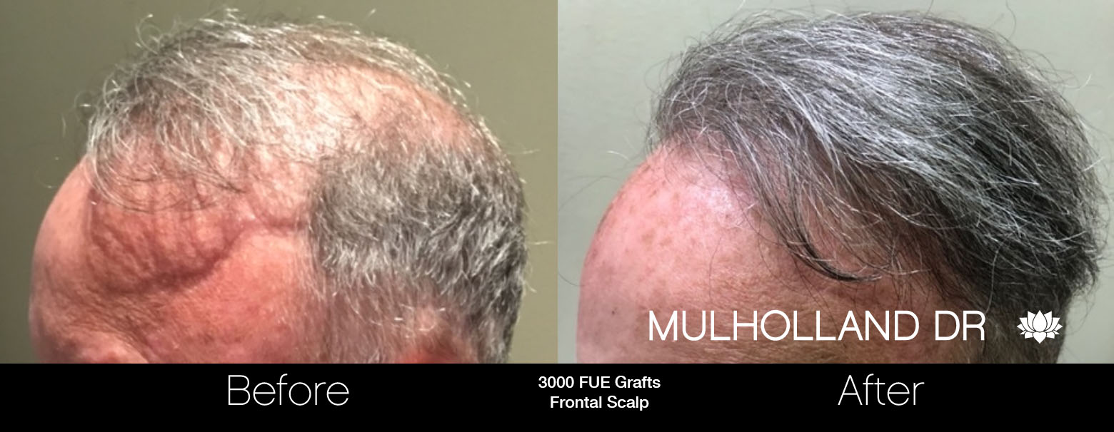 FUE Hair Male - Before and After Gallery – Photo 73