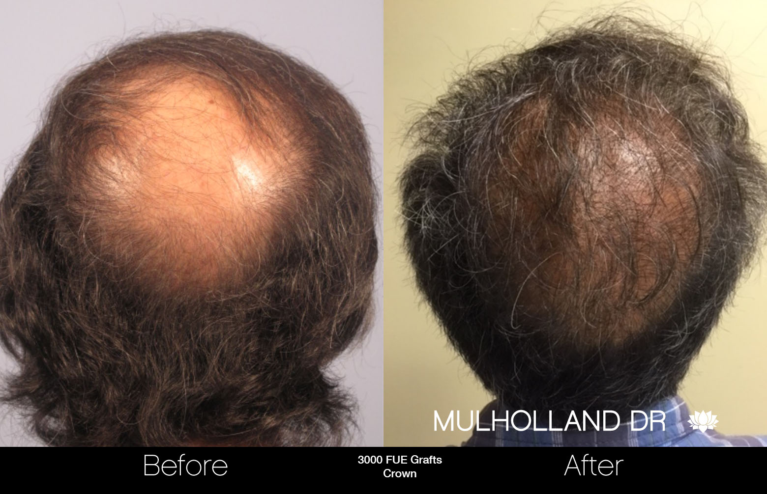 FUE Hair Male - Before and After Gallery – Photo 75