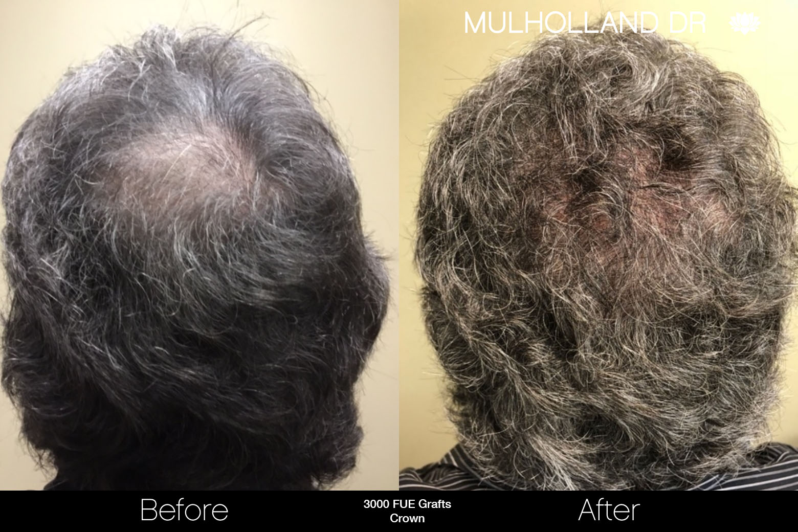 FUE Hair Male - Before and After Gallery – Photo 77