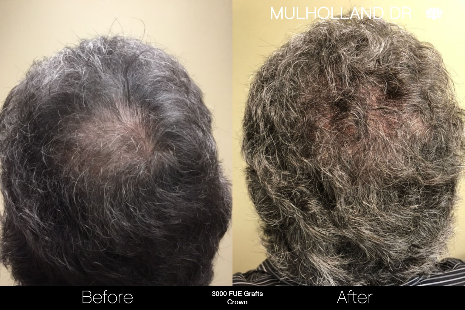 FUE Hair Male - Before and After Gallery – Photo 78