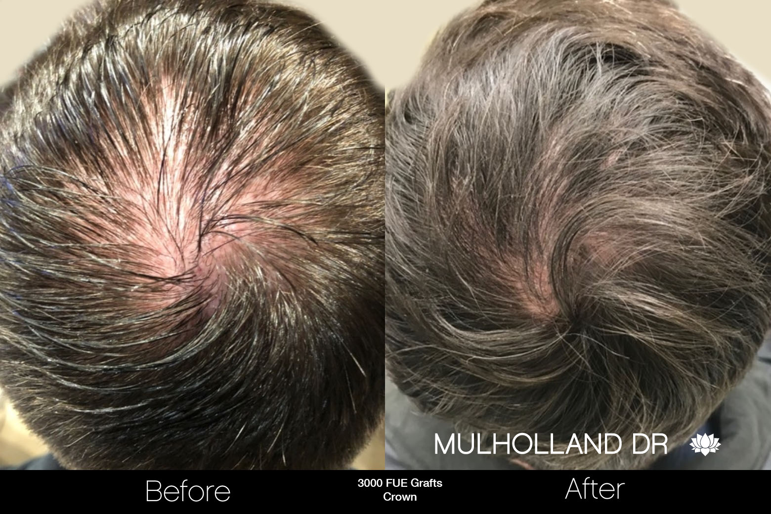 FUE Hair Male - Before and After Gallery – Photo 80